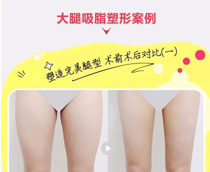 大腿吸脂-详情_01.jpg